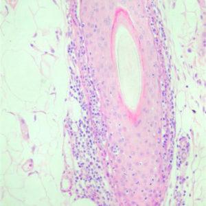 Figur 4 – Histologisk udsnit af hårfollikel, hvor der ses lokal infiltration af folliklens yderste lag med lymfocytter (Foto: Joan Rest).
